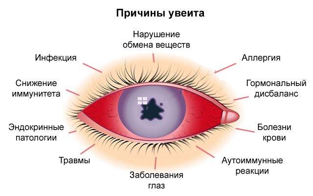 Что выявляет магнитно-резонансная томография глаз