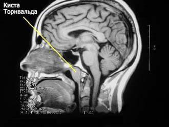 МР-диагностика патологий мягких тканей