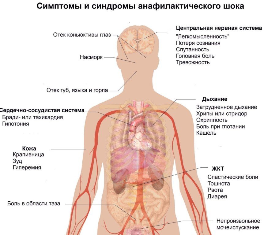 МР-диагностика под наркозом: цели и техника анестезии