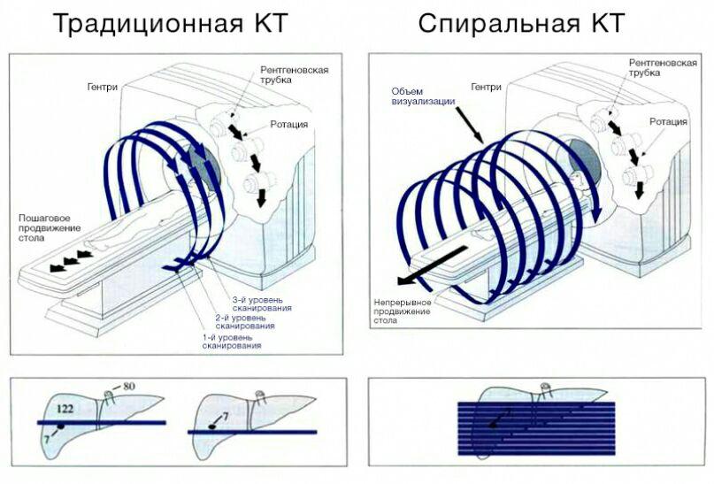КТ СКТ и МСКТ: сходство и различия, показания и противопоказания, цена и частота сканирования