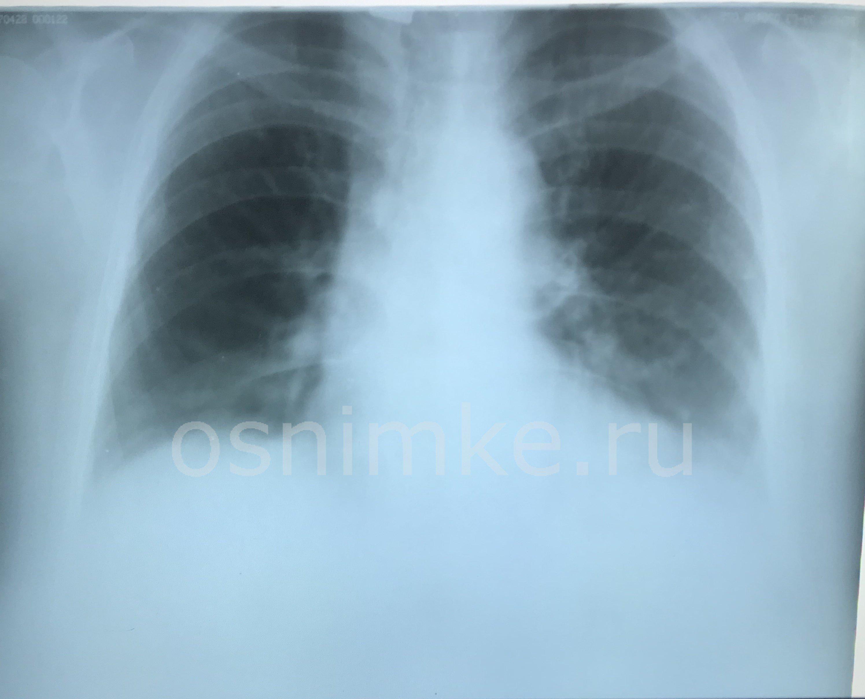 Подозрение на пневмонию