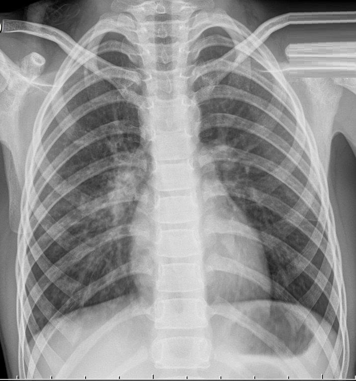 Правосторонняя бронхо- пневмония