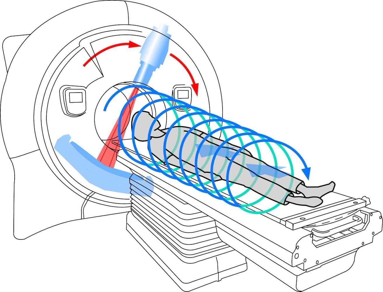 Принцип работы компьютерного томографа