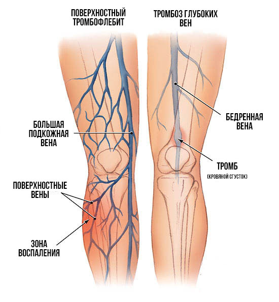 Тромбоз ноги