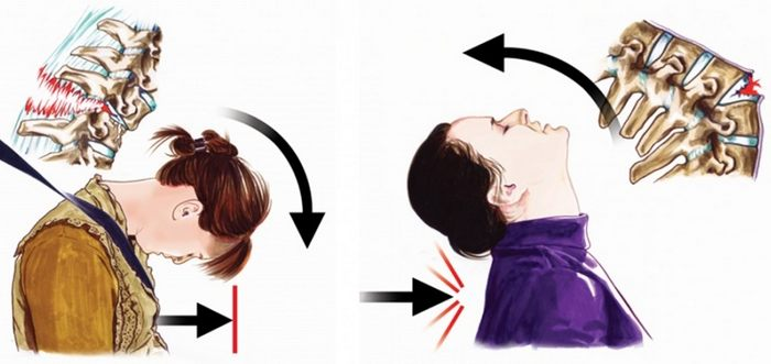 Перелом шейного отдела при ДТП