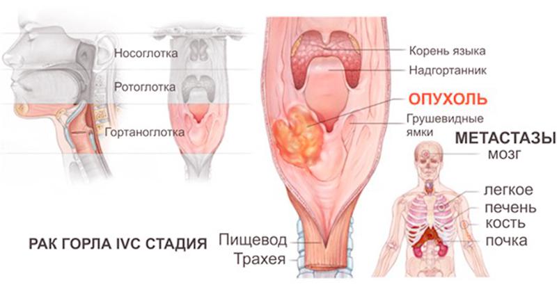 Клиническая картина рака