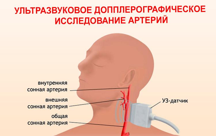 УЗИ сонной артерии