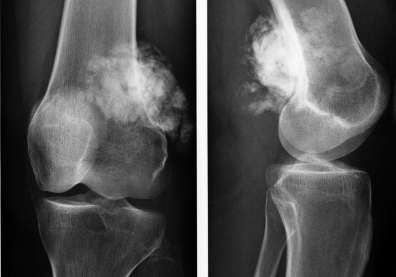 Остеома коленного сустава