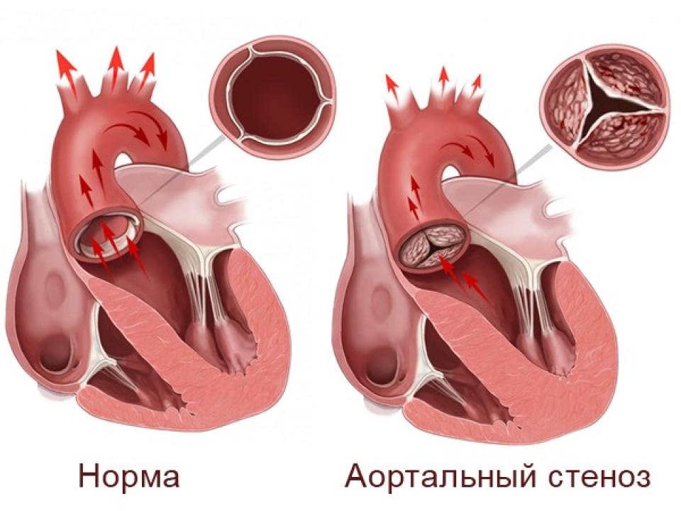 Описание стеноза