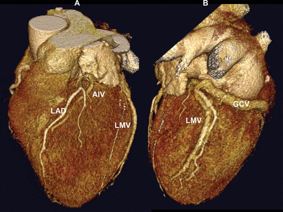 Обследование корональных артерий