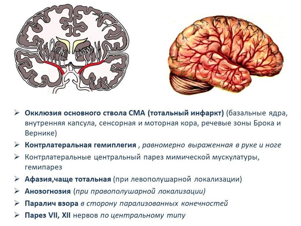 Описание заболеваний мозга