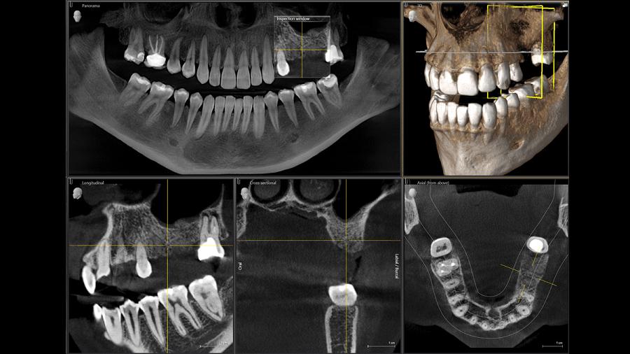 Снимок КТ зубов