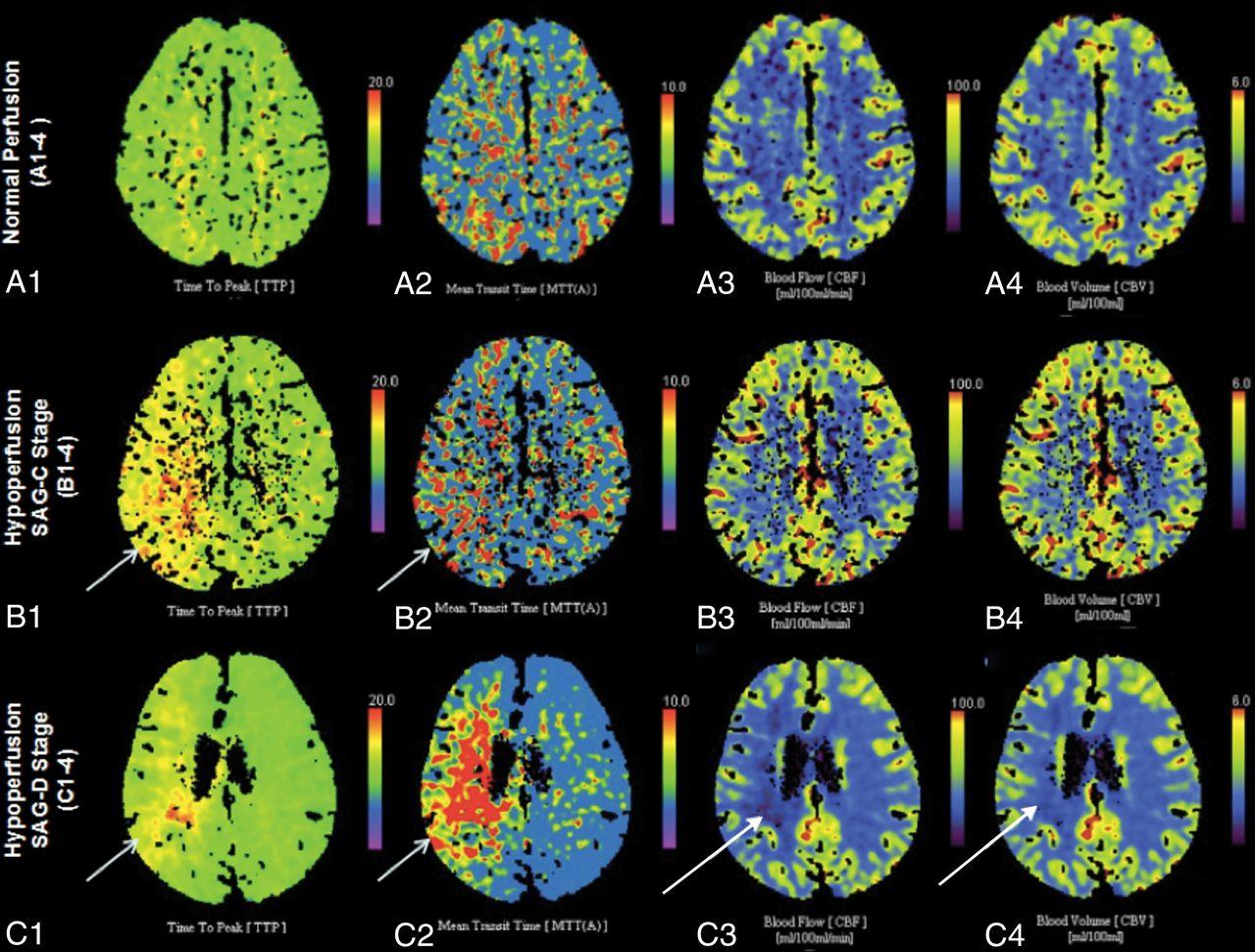 Роль КТ-перфузии в оценке инфарктов и опухолей головного мозга